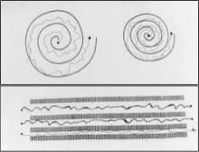 ET spirals