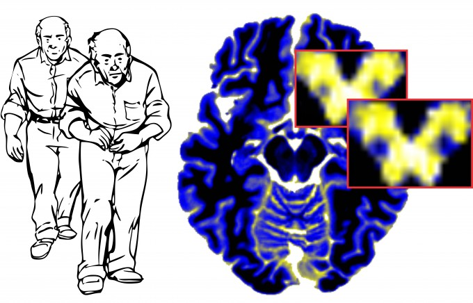 Cut outs show increase in free water in substantia nigra over one year in Parkinson disease
