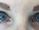 Blepharospasm Possible Treatments: Botulinum Toxin and Rose-Tinted Glasses