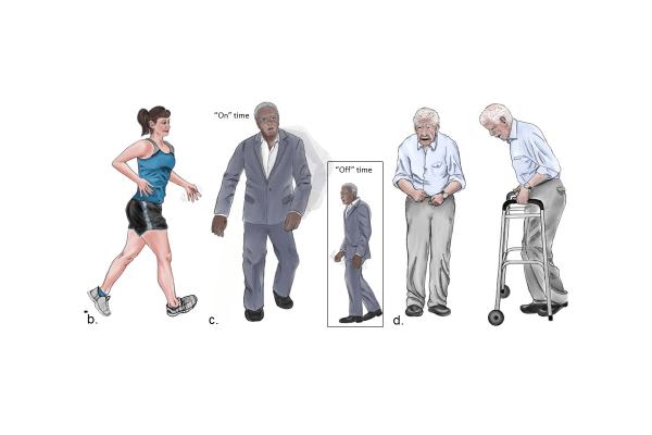 New images of Parkinson disease patients