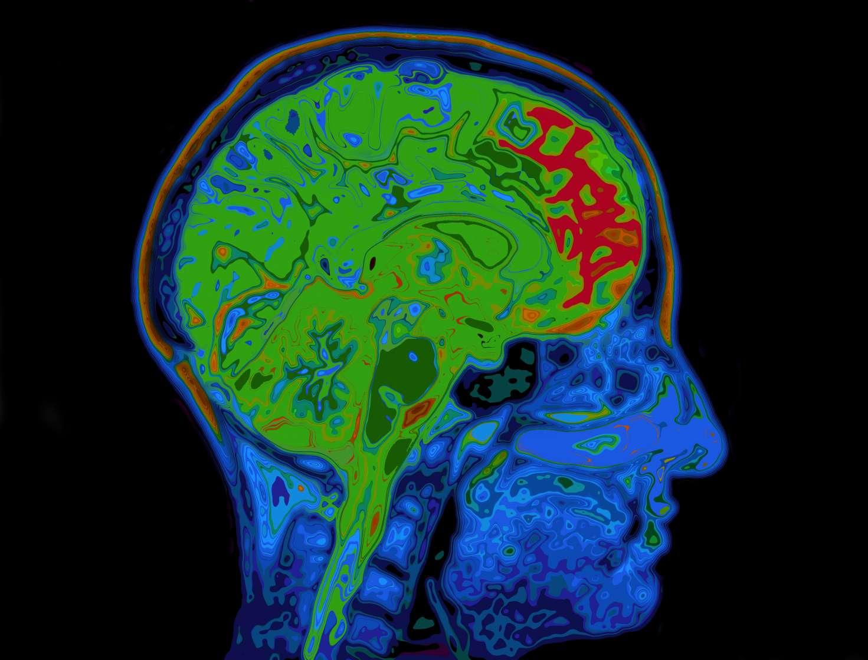 MRI of Brain